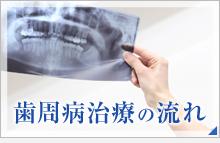 歯周病治療の流れ